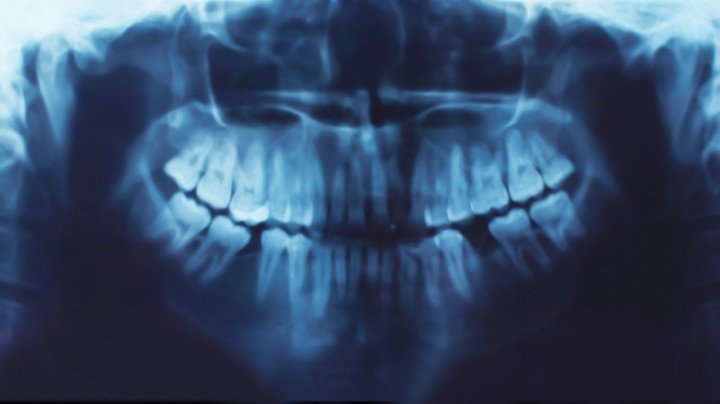 Unique Dental of Worcester offers Digital Xrays