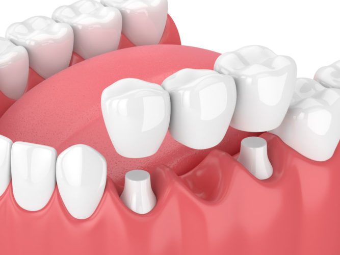 dental bridge worcester